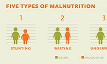 Thumb of five types of malnutrition diagram